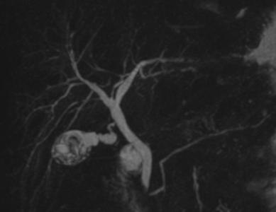 MRKHPH-mahnitno-rezonansna-kholanhiopankreatohrafiia